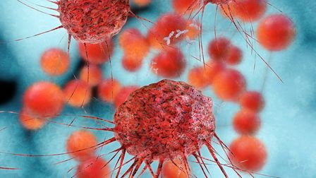 A patient's cells can be 'trained' to detect and destroy cancer cells like these (photo: xrender, Ge