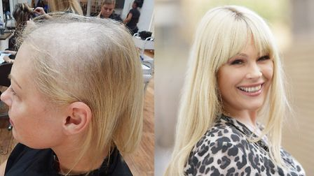 Carla before and after her Intralace System treatment