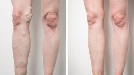 Before and after treatment at the Veincentre. Copyright Emilie Sandy Photography