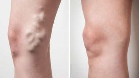 Before and after treatment Copyright: Emilie Sandy Photography