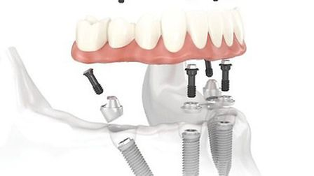 The Dental Academy has more than 25 years' experience in the field of dental implants. Picture: Dent