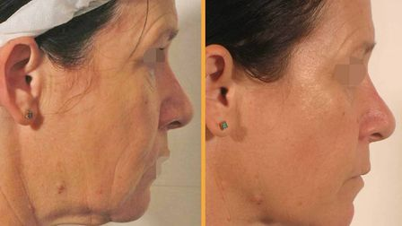 Ground-breaking, non-surgical, anti-aging treatments can deliver immediate and long-lasting results.