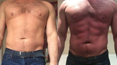 Before and after a single LipoFirm Abdo Sculpt treatment. Courtesy of of Advanced Esthetic Solutions