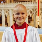 James Mason-Carney, age 12, lost all of his hair due to alopecia. Photo: Emma Solley