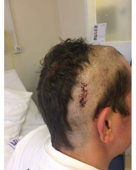 Picture of teenager showing scars after brain tumour surgery