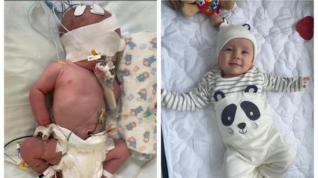 Olly Drury after he was born with tubes, and now happy and healthy at five months old