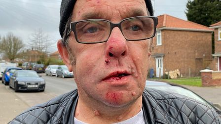 Police have appealed for witnesses after Carl Paston suffered facial injuries inrobberyon Dereham Road in Norwich.