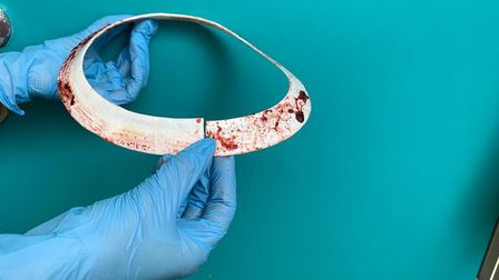 The plastic collar measured 2.5cm and was embedded in the seal's neck.
