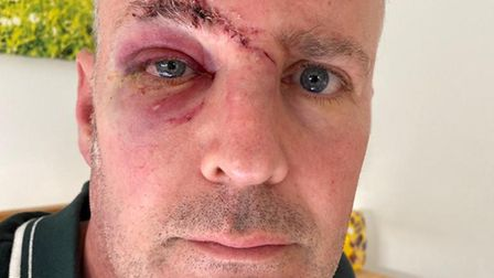 John Sanders with a bruised right eye and a stitched wound