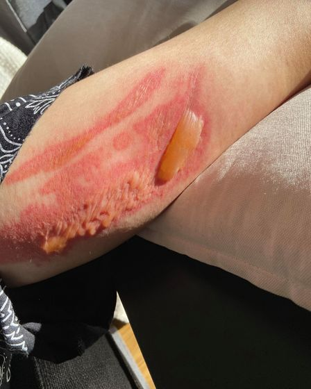 One of the burns Cara received from the hot water bottle.