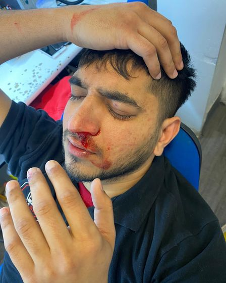 Aman Mohammed bleeding after the attack on Tuesday.