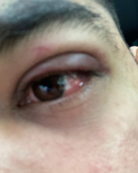 An eye injury suffered by Aman Mohammed after being attacked in a Norwich shop.