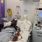 Sickle cell hospital bed