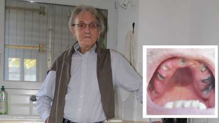 Phil Wellman contracted hepatitis C from a tainted blood transfusion in the 1970s and is now suffering extreme dental pain