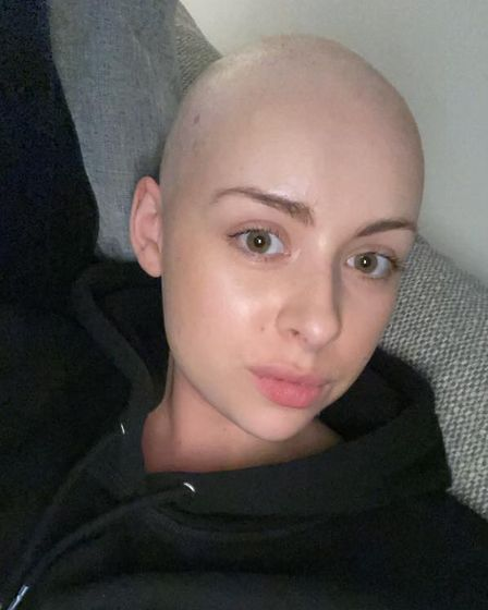 Sophie Hitchen, from Felixstowe, was diagnosed with alopecia areata.