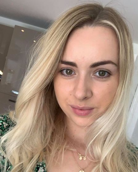 Sophie Hitchen has recently bought a wig after losing her hair to alopecia areata.