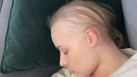 Sophie Hitchen decided to shave the rest of her hair off after losing around 90% of it within six weeks.