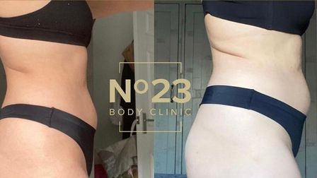 Results from fat freezing treatment and ultrasound on stomach and back fat at the No 23 Body Clinic, Hatfield, Hertfordshire.