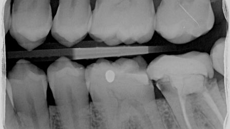 The X-ray showsSukhvinder's badly decayed lower left second molar.