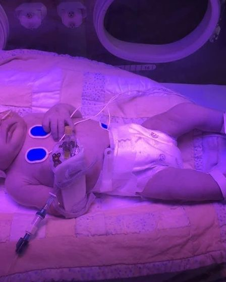 Baby Marcy in the neonatal intensive care unit
