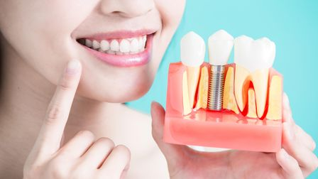 Dental implant example at Dental Art Implant Clinics in London
