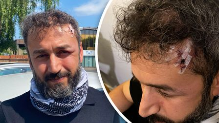 Cabbie Sahd Suliman, who suffered injuries in a racial attack in Norwich city centre
