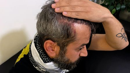 Cabbie Sahd Suliman shows a gash to his head after being assaulted in Norwich