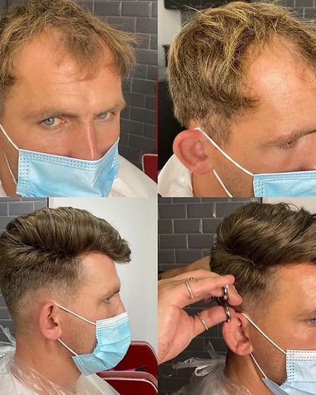 Gone today, hair tomorrow. Hair Development UK has a variety of methods for regrowth.