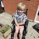 Isaac Davis, who lives in Norwich, suffers fromDuchenne muscular dystrophy