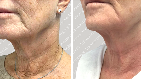 After and before results of the Morpheus8 treatment performed on the lower face at the Vie Aesthetics clinic in Essex.