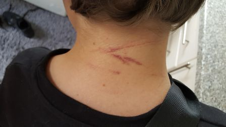 A photo taken by Jake's mother of the scratches on the back of his neck.