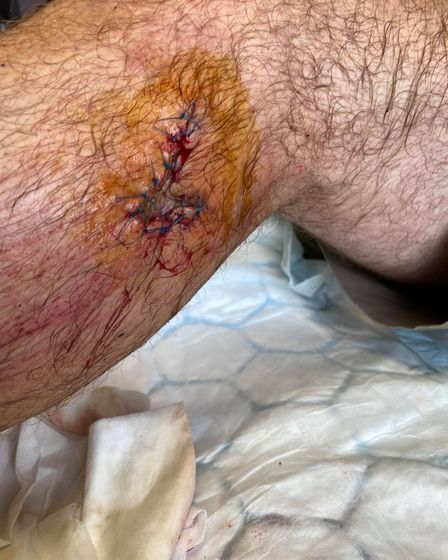 Blind man given 10 stitches to injury after pavement collapses in Nailsea