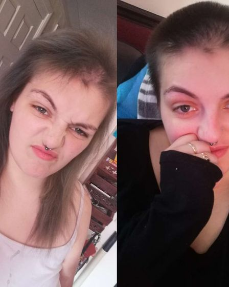 Miss Collins has trichotillomania, and the stress has worsened her symptoms.