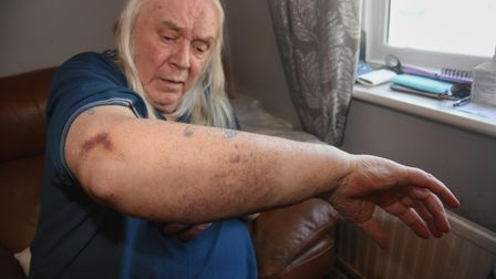 Bruises on Paul Reynolds' arm which happened when three masked men raided his home. Picture: Daniell