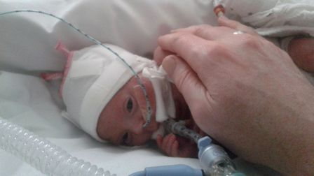 """""""Miracle baby"""" Maija Pettitt weighed just 470 grams when she was born."""