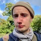 Mike Wills was the victim of an unprovoked attack in Mousehold Lane